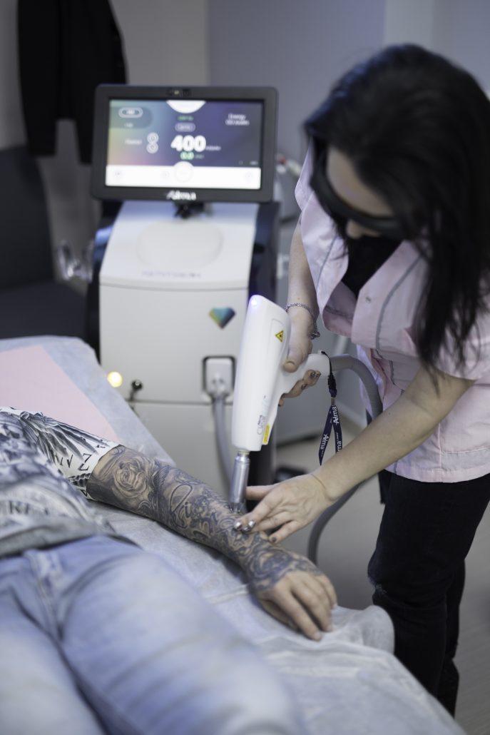 Премахване на татуировки и перманентен грим