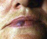 Лазерна терапия на васкуларни лезии-11