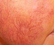 Лазерна терапия на васкуларни лезии-10